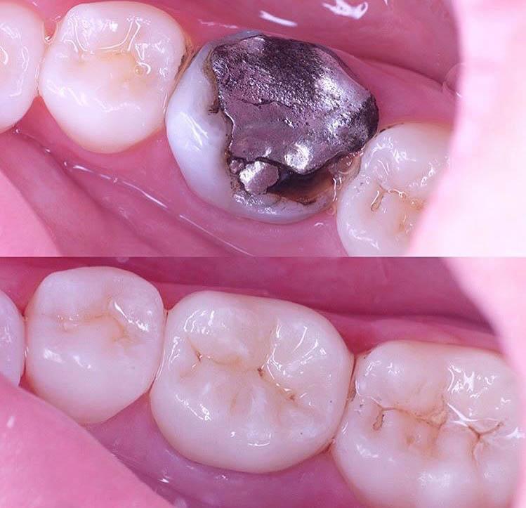 dentiste esthétique marseille 13001
