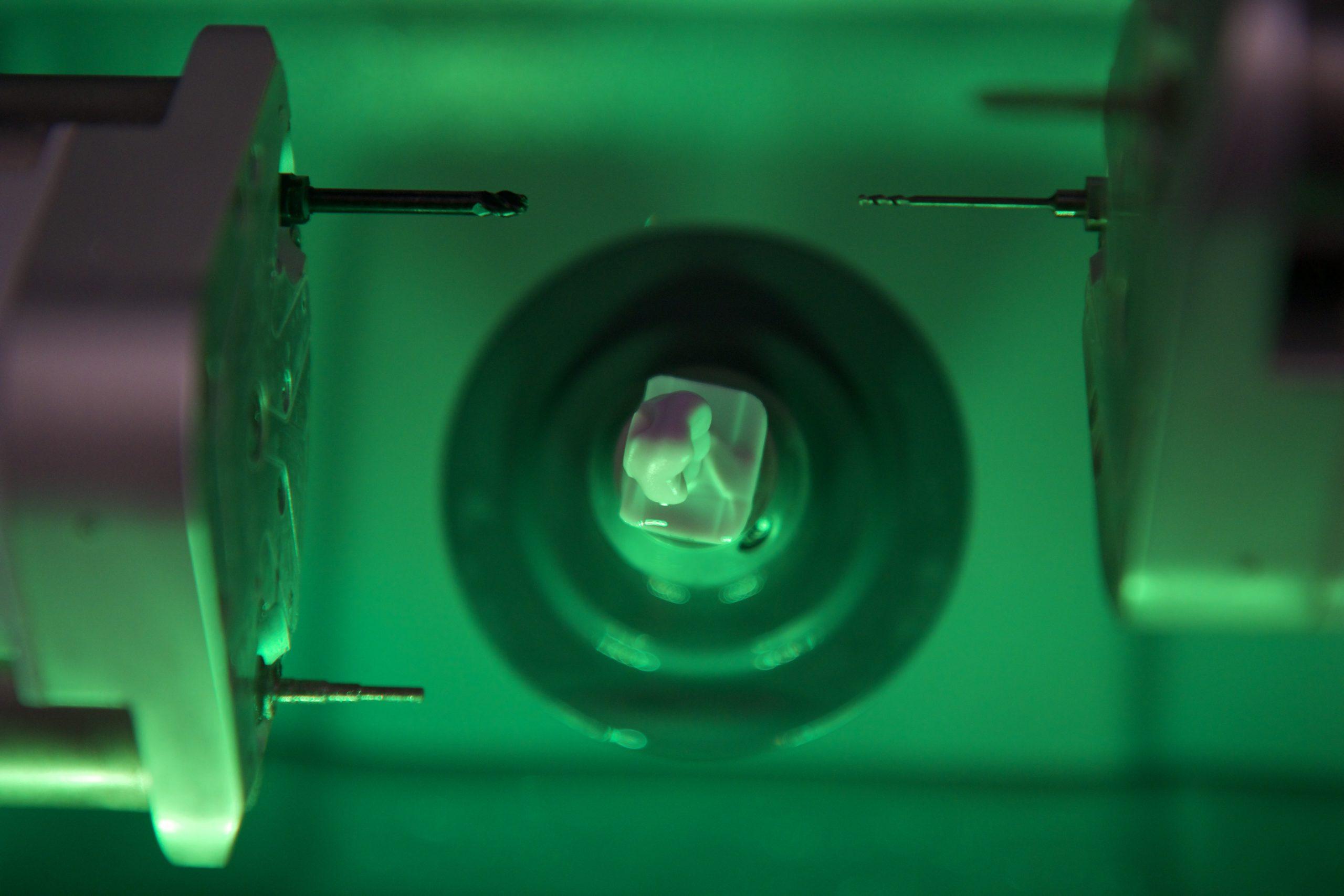 couronne sur implant marseille